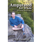 Amputated Yet Whole: How Adversity Made Me Complete