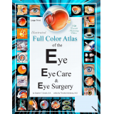 Illustrated Full Color Atlas of the Eye, Eye Care, and Eye Surgery