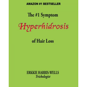 The #1 Symptom of Hair Loss Hyperhidrosis
